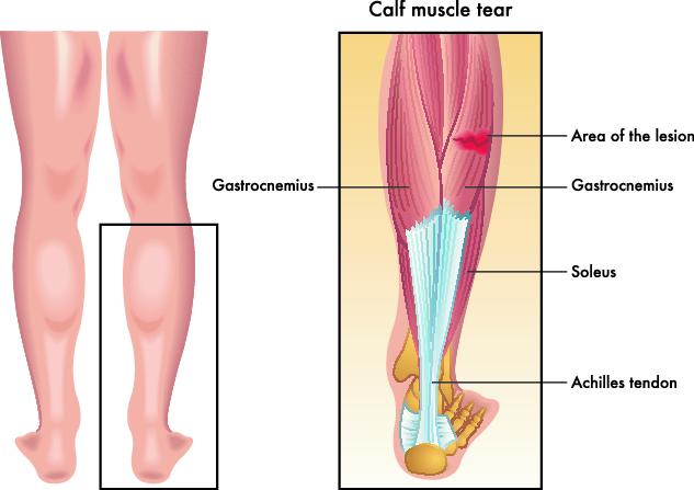 sterke leggmuskler